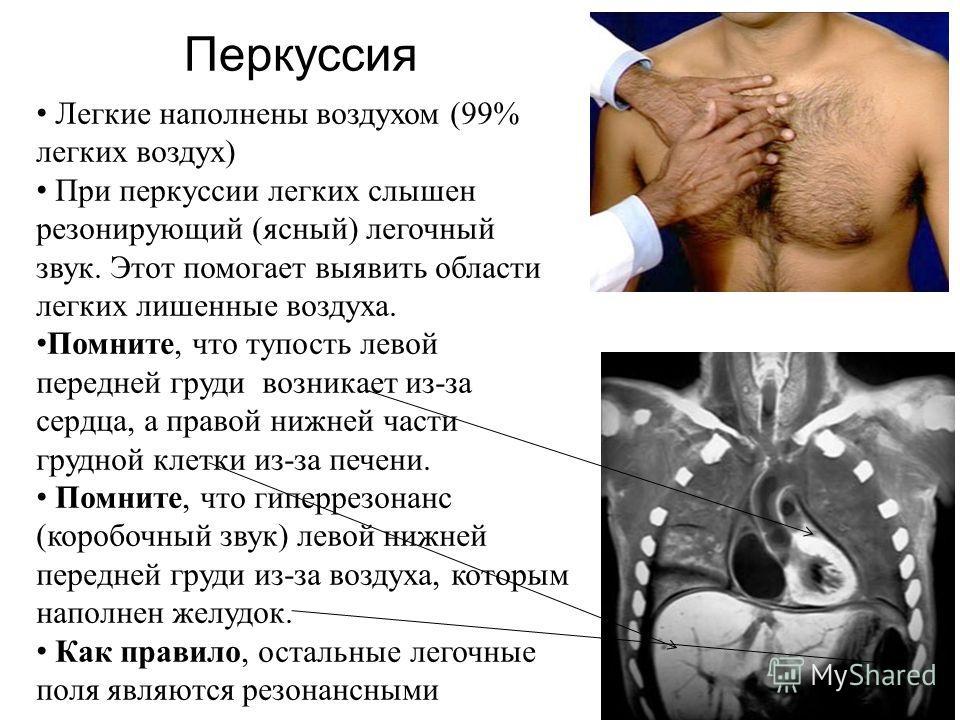 Легкие наполнены воздухом (99% легких воздух) При перкуссии легких слышен резонирующий (ясный) легочный звук. Этот помогает выявить области легких лишенные воздуха. Помните, что тупость левой передней груди возникает из-за сердца, а правой нижней час