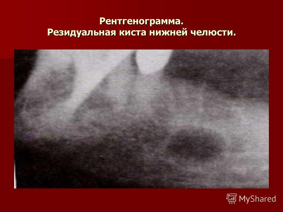 Рентгенограмма. Резидуальная киста нижней челюсти.