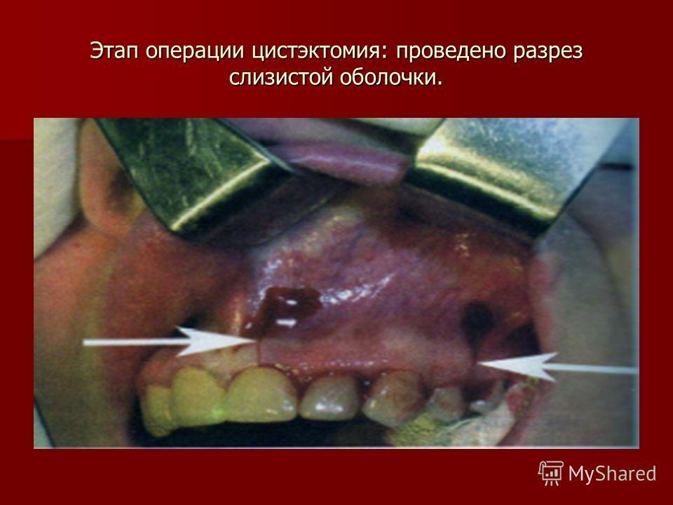 Этап операции цистэктомия: проведено разрез слизистой оболочки.