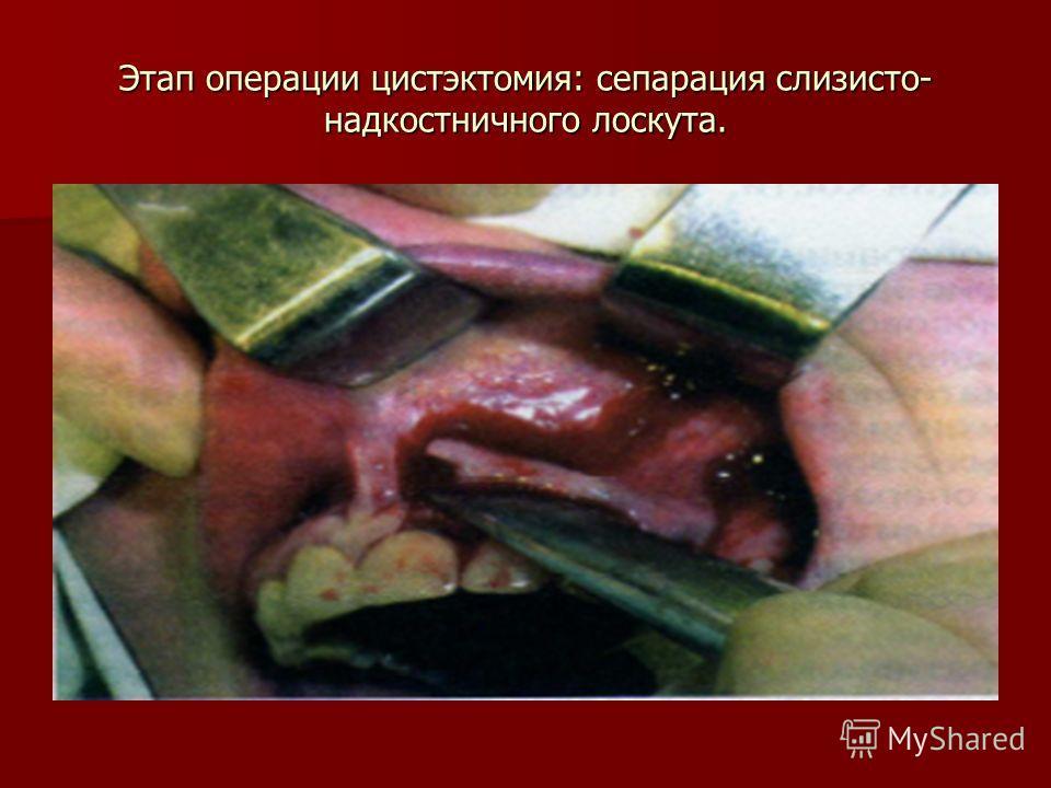 Этап операции цистэктомия: сепарация слизисто- надкостничного лоскута.