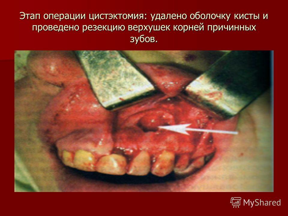 Этап операции цистэктомия: удалено оболочку кисты и проведено резекцию верхушек корней причинных зубов.
