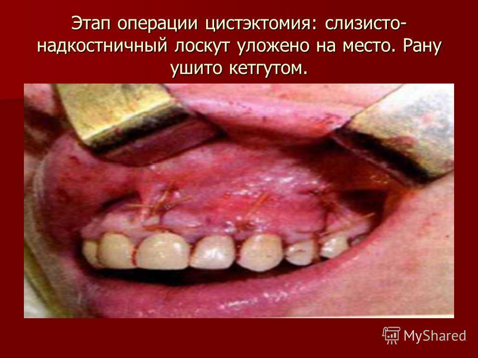 Этап операции цистэктомия: слизисто- надкостничный лоскут уложено на место. Рану ушито кетгутом.
