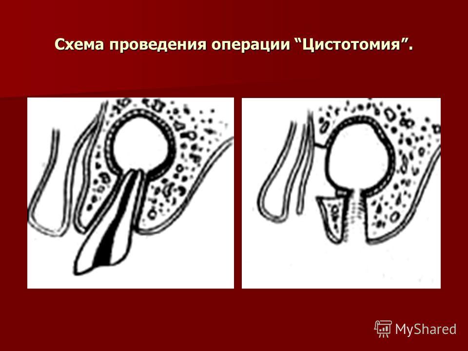 Схема проведения операции Цистотомия.