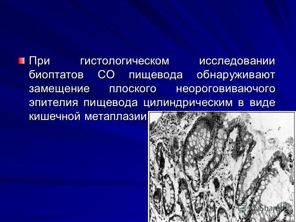 При гистологическом исследовании биоптатов СО пищевода обнаруживают замещение плоского неороговиваючого эпителия пищевода цилиндрическим в виде кишечной метаплазии.