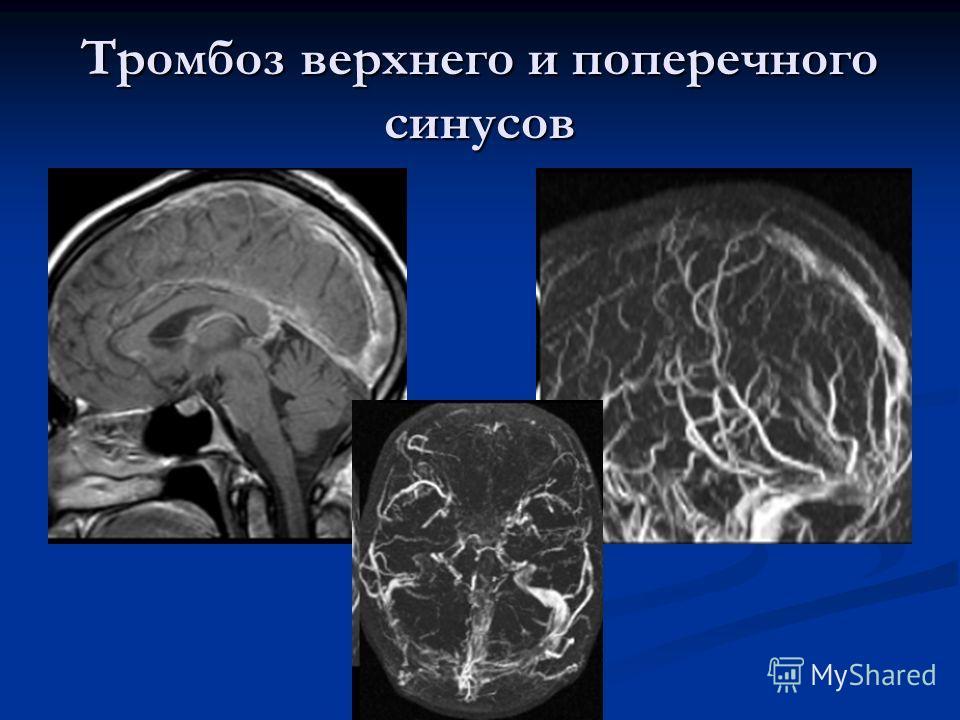 Тромбоз верхнего и поперечного синусов