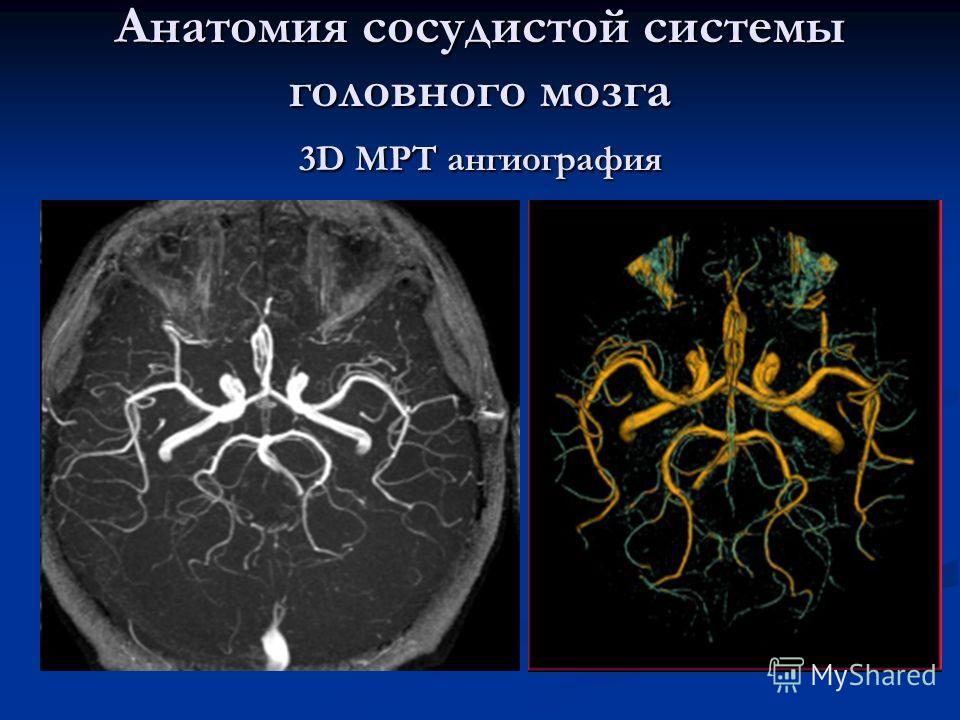 Анатомия сосудистой системы головного мозга 3D МРТ ангиография
