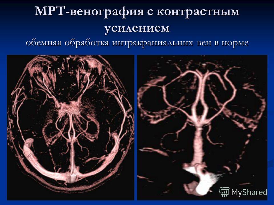 МРТ-венография с контрастным усилением обемная обработка интракраниальних вен в норме