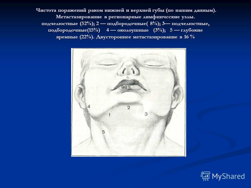 Чистота поражений раком нижней и верхней губы (по нашим данным). Метастазирование в регионарные лимфннчсские узлы. подчелюстные (52%); 2 подбородочные( 8%); 3 подчелюстные, подбородочные(15%) 4 околоушные (3%); 5 глубокие яремные (22%). Двустороннее