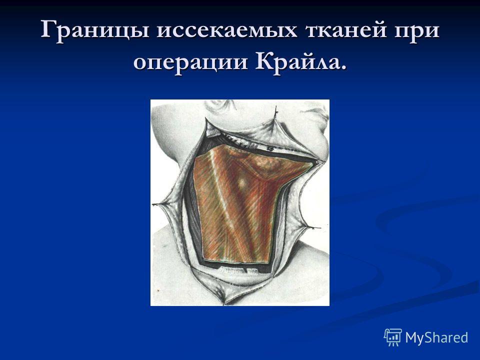 Границы иссекаемых тканей при операции Крайла.