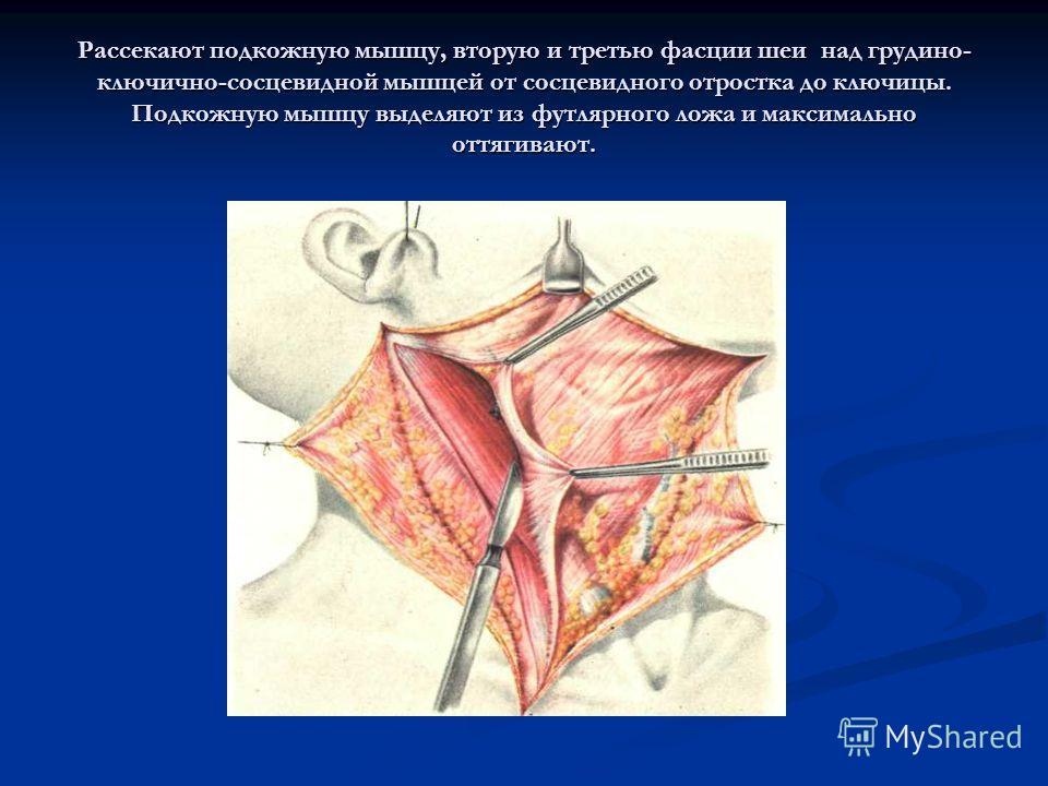 Рассекают подкожную мышцу, вторую и третью фасции шеи над грудино- ключично-сосцевидной мышцей от сосцевидного отростка до ключицы. Подкожную мышцу выделяют из футлярного ложа и максимально оттягивают.