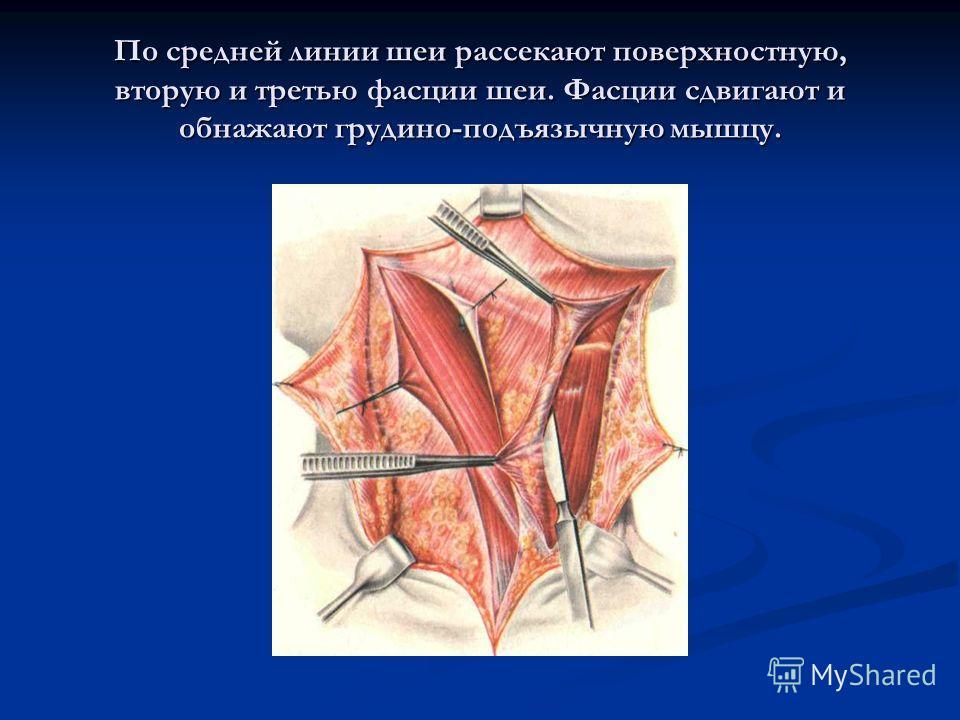 По средней линии шеи рассекают поверхностную, вторую и третью фасции шеи. Фасции сдвигают и обнажают грудино-подъязычную мышцу.