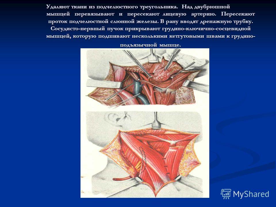 Удаляют ткани из подчелюстного треугольника. Над двубрюшной мышцей перевязывают и пересекают лицевую артерию. Пересекают проток подчелюстной слюнной железы. В рану вводят дренажную трубку. Сосудисто-нервный пучок прикрывают грудино-ключично-сосцевидн