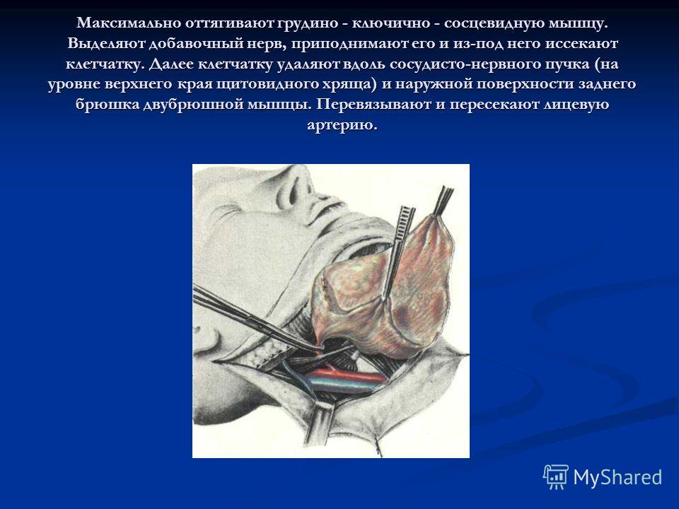 Максимально оттягивают грудино - ключично - сосцевидную мышцу. Выделяют добавочный нерв, приподнимают его и из-под него иссекают клетчатку. Далее клетчатку удаляют вдоль сосудисто-нервного пучка (на уровне верхнего края щитовидного хряща) и наружной