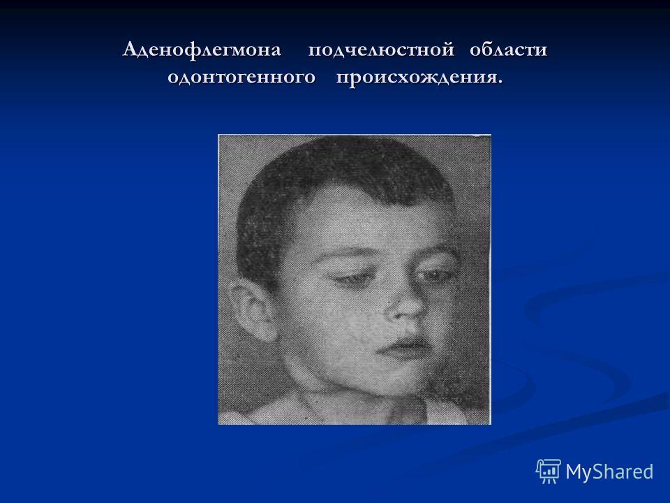 Аденофлегмона подчелюстной области одонтогенного происхождения.