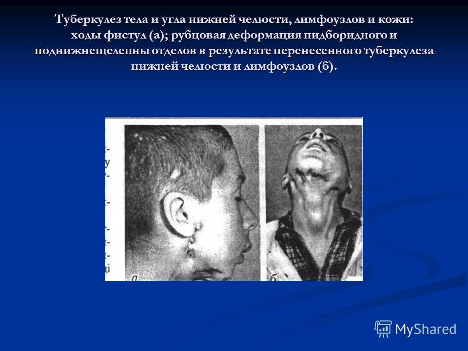 Туберкулез тела и угла нижней челюсти, лимфоузлов и кожи: ходы фистул (а); рубцовая деформация пидборидного и поднижнещелепны отделов в результате перенесенного туберкулеза нижней челюсти и лимфоузлов (б).