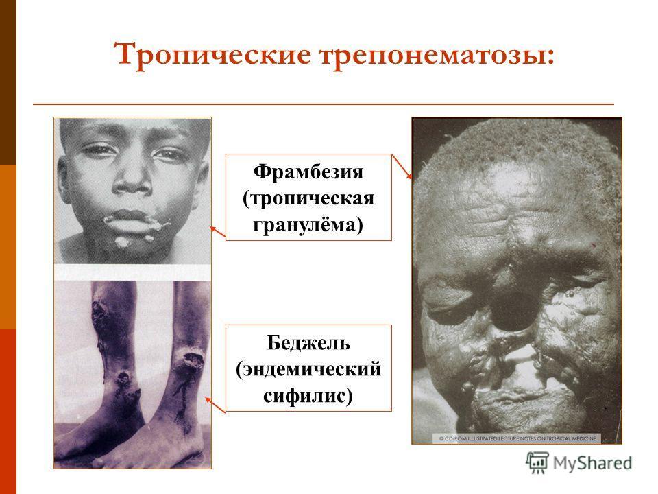 Тропические трепонематозы: Фрамбезия (тропическая гранулёма) Беджель (эндемический сифилис)