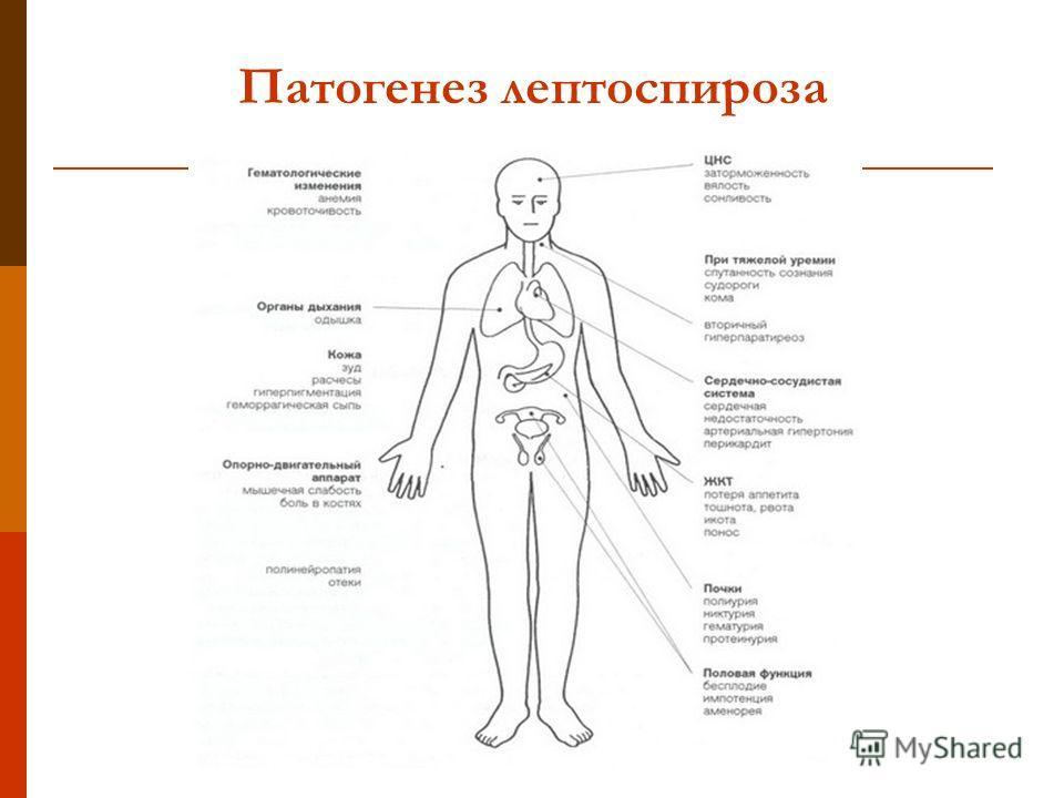 Патогенез лептоспироза