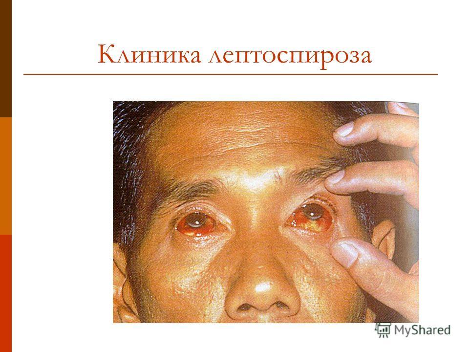 Клиника лептоспироза