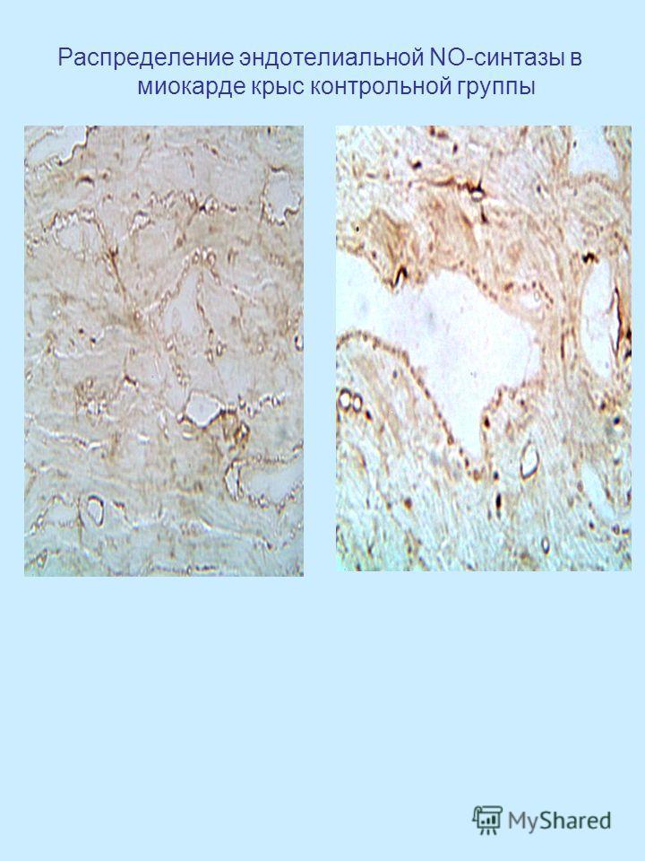 Распределение эндотелиальной NO-синтазы в миокарде крыс контрольной группы