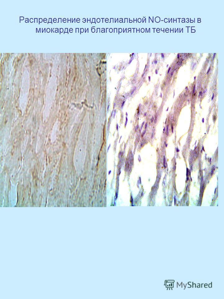 Распределение эндотелиальной NO-синтазы в миокарде при благоприятном течении ТБ