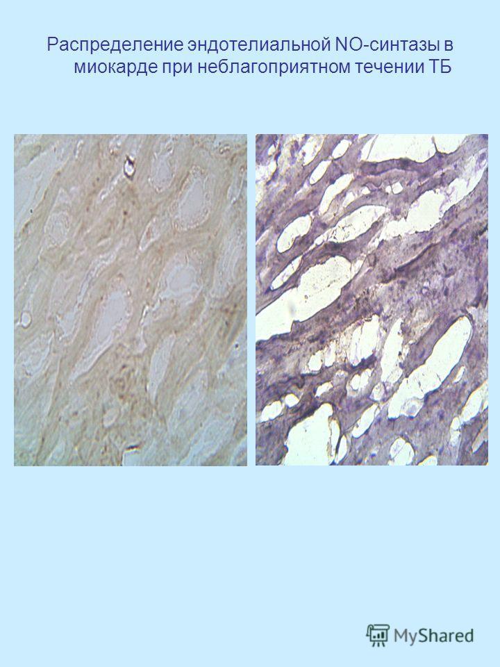 Распределение эндотелиальной NO-синтазы в миокарде при неблагоприятном течении ТБ