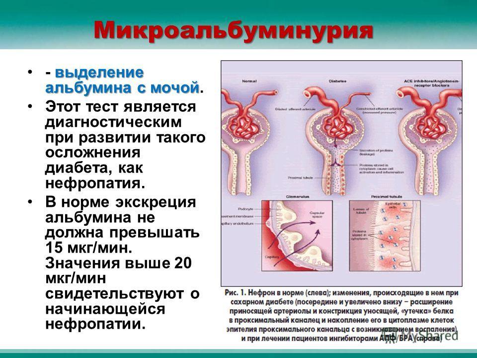 Микроальбуминурия выделение альбумина с мочой- выделение альбумина с мочой. Этот тест является диагностическим при развитии такого осложнения диабета, как нефропатия. В норме экскреция альбумина не должна превышать 15 мкг/мин. Значения выше 20 мкг/ми