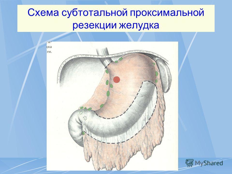 Схема субтотальной проксимальной резекции желудка