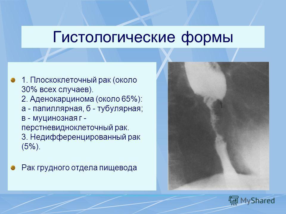 Гистологические формы 1. Плоскоклеточный рак (около 30% всех случаев). 2. Аденокарцинома (около 65%): а - папиллярная, б - тубулярная; в - муцинозная г - перстневидноклеточный рак. 3. Недифференцированный рак (5%). Рак грудного отдела пищевода