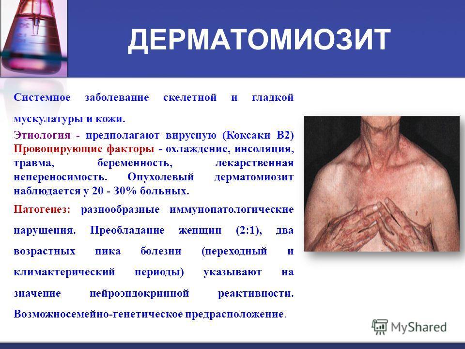 ДЕРМАТОМИОЗИТ Системное заболевание скелетной и гладкой мускулатуры и кожи. Этиология - предполагают вирусную (Коксаки В2) Провоцирующие факторы - охлаждение, инсоляция, травма, беременность, лекарственная непереносимость. Опухолевый дерматомиозит на