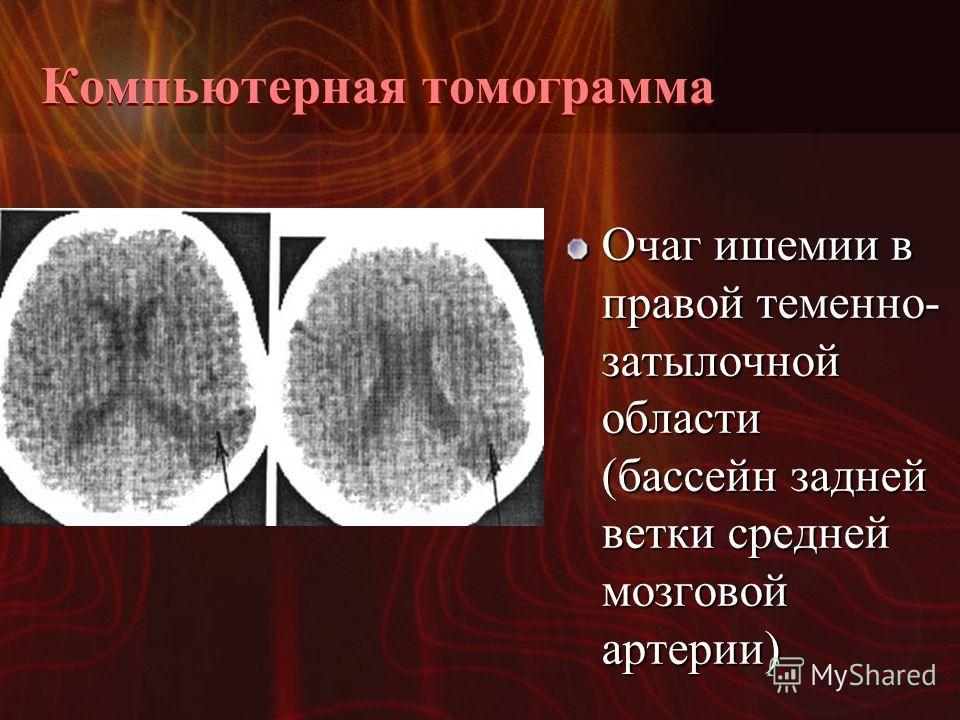 Vasilishin W Компьютерная томограмма Очаг ишемии в правой теменно- затылочной области (бассейн задней ветки средней мозговой артерии)