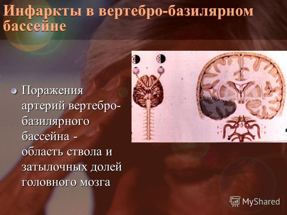Vasilishin W Инфаркты в вертебро-базилярном бассейне Поражения артерий вертебро- базилярного бассейна - область ствола и затылочных долей головного мозга