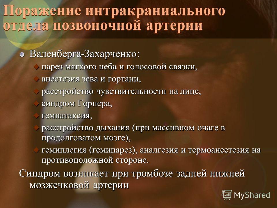 Vasilishin W Поражение интракраниального отдела позвоночной артерии Валенберга-Захарченко: u парез мягкого неба и голосовой связки, u анестезия зева и гортани, u расстройство чувствительности на лице, u синдром Горнера, u гемиатаксия, u расстройство