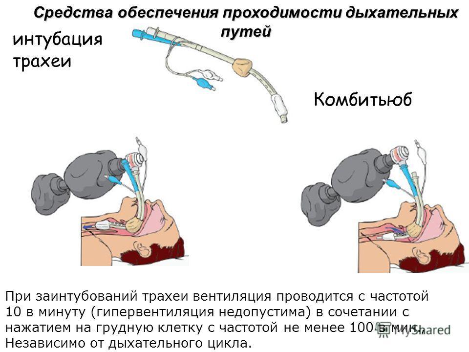 Средства обеспечения проходимости дыхательных путей Комбитьюб При заинтубований трахеи вентиляция проводится с частотой 10 в минуту (гипервентиляция недопустима) в сочетании с нажатием на грудную клетку с частотой не менее 100 в мин., Независимо от д