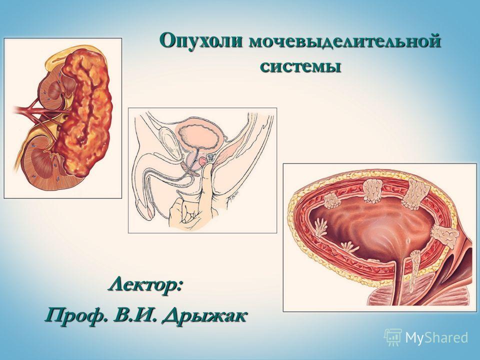 Лектор: Проф. В.И. Дрыжак Опухоли мочевыделительной системы