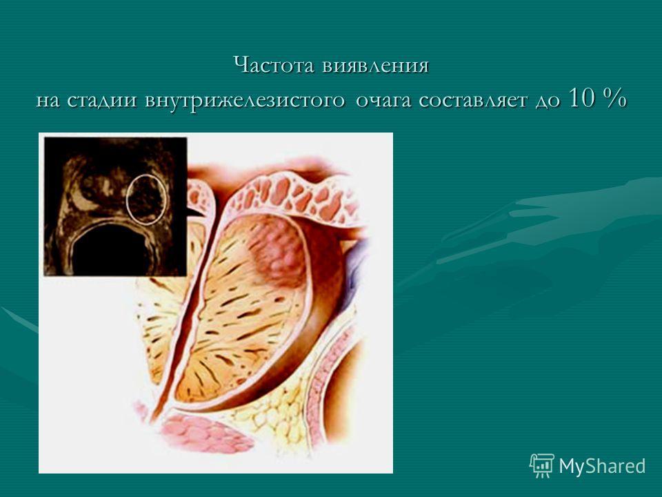 Частота виявления на стадии внутрижелезистого очага составляет до 10 %