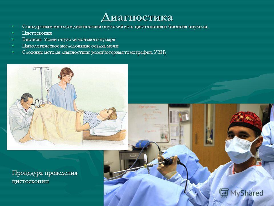 Диагностика Стандартным методом диагностики опухолей есть цистоскопия и биопсия опухоли.Стандартным методом диагностики опухолей есть цистоскопия и биопсия опухоли. ЦистоскопияЦистоскопия Биопсия ткани опухоли мочевого пузыряБиопсия ткани опухоли моч