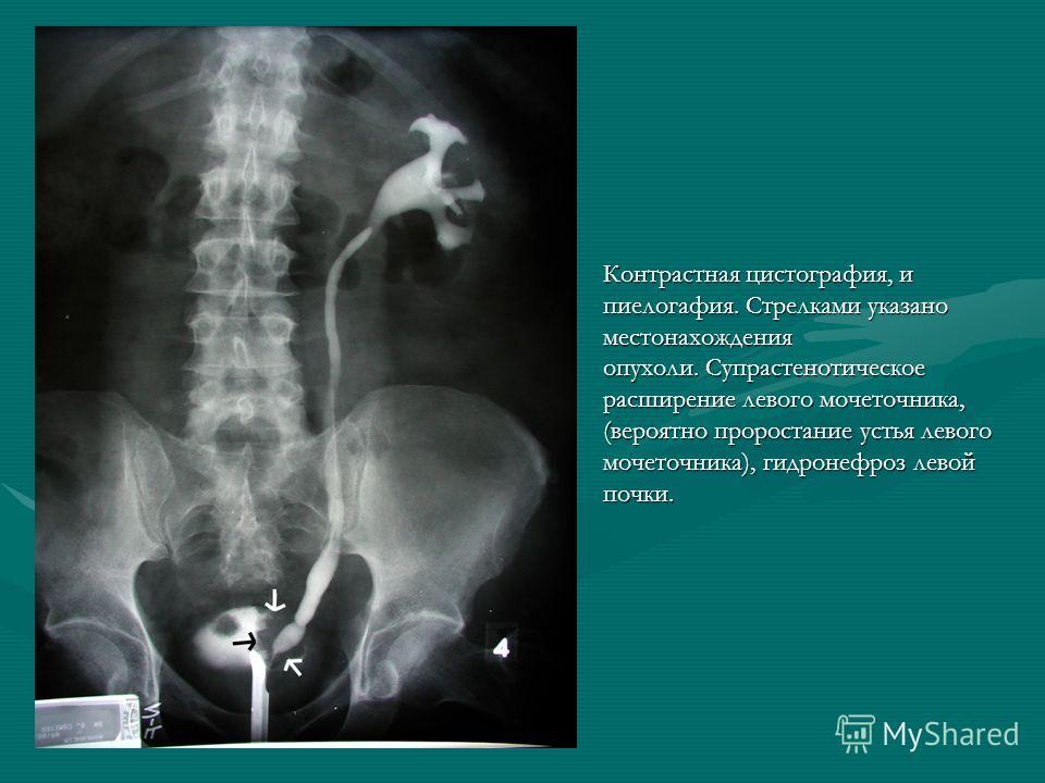 Контрастная цистография, и пиелогафия. Стрелками указано местонахождения опухоли. Супрастенотическое расширение левого мочеточника, (вероятно проростание устья левого мочеточника), гидронефроз левой почки.