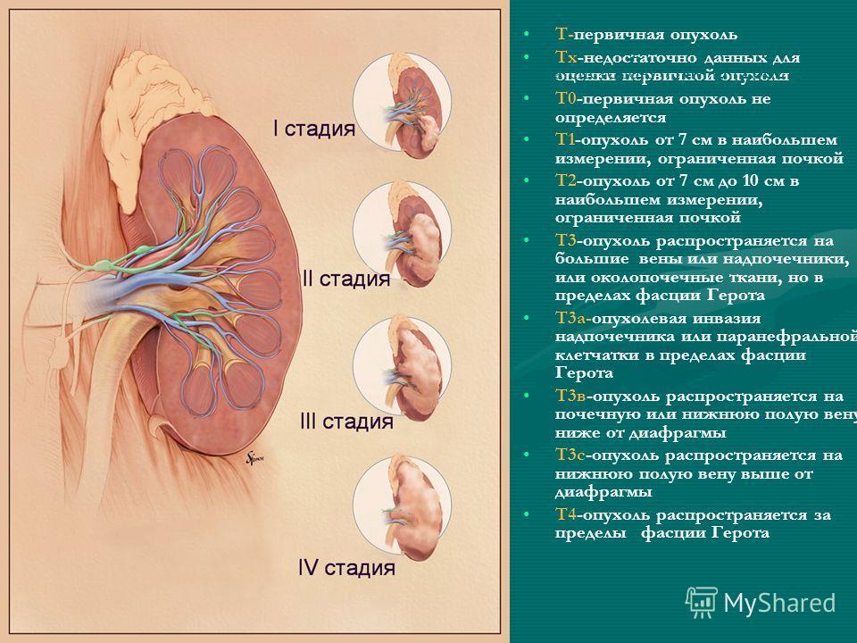 Т-первичная опухоль Тх-недостаточно данных для оценки первичной опухоли Т0-первичная опухоль не определяется Т1-опухоль от 7 см в наибольшем измерении, ограниченная почкой Т2-опухоль от 7 см до 10 см в наибольшем измерении, ограниченная почкой Т3-опу