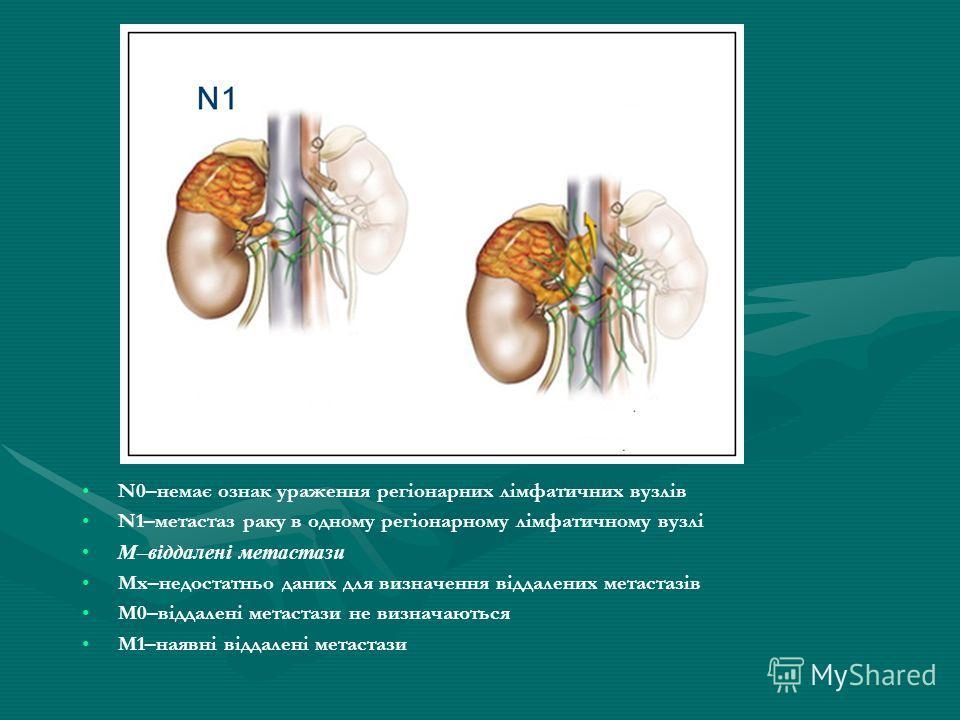 N0–немає ознак ураження регіонарних лімфатичних вузлів N1–метастаз раку в одному регіонарному лімфатичному вузлі М–віддалені метастази Мх–недостатньо даних для визначення віддалених метастазів М0–віддалені метастази не визначаються М1–наявні віддален