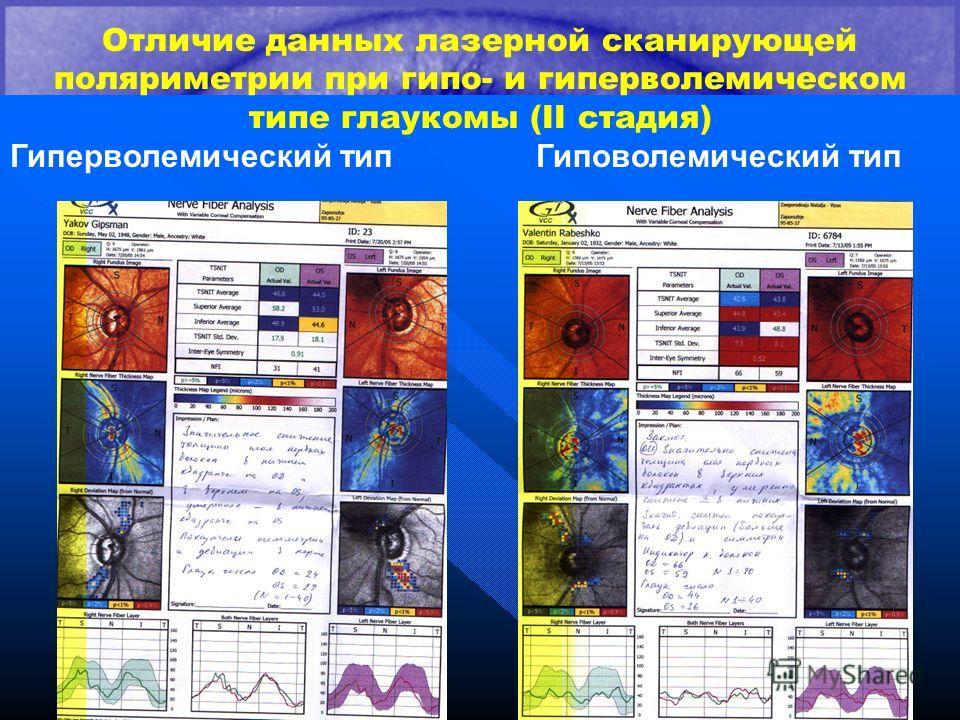Отличие данных лазерной сканирующей поляриметрии при гипо- и гиперволемическом типе глаукомы (II стадия) Гиперволемический тип Гиповолемический тип