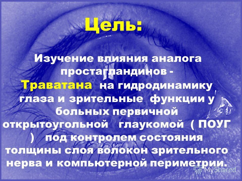 Цель: Изучение влияния аналога простагландинов - Траватана на гидродинамику глаза и зрительные функции у больных первичной открытоугольной глаукомой ( ПОУГ ) под контролем состояния толщины слоя волокон зрительного нерва и компьютерной периметрии.