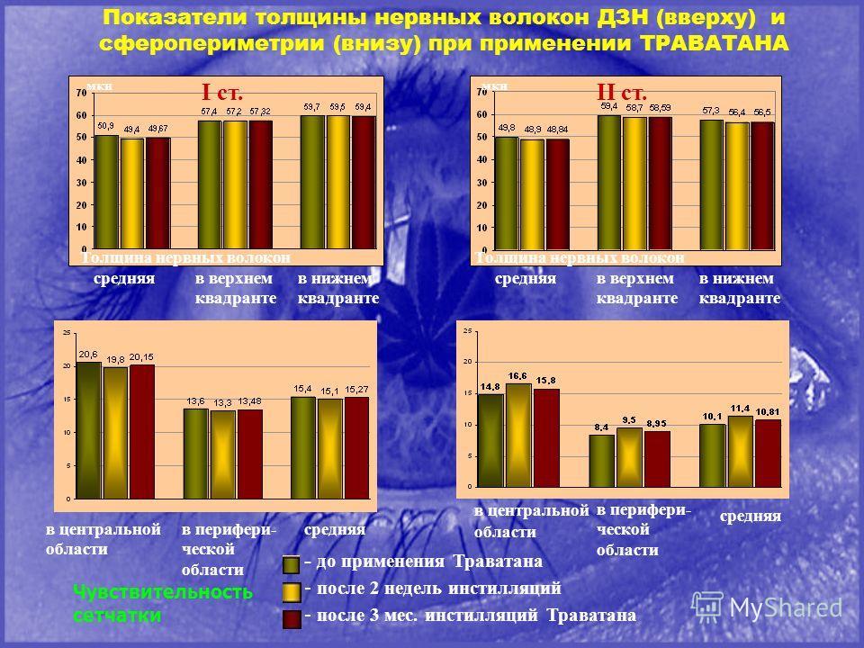Показатели толщины нервных волокон ДЗН (вверху) и сферопериметрии (внизу) при применении ТРАВАТАНА мкн I ст. II ст. III ст.IV ст. Толщина нервных волокон средняяв верхнем квадранте в нижнем квадранте - до применения Траватана Чувствительность сетчатк