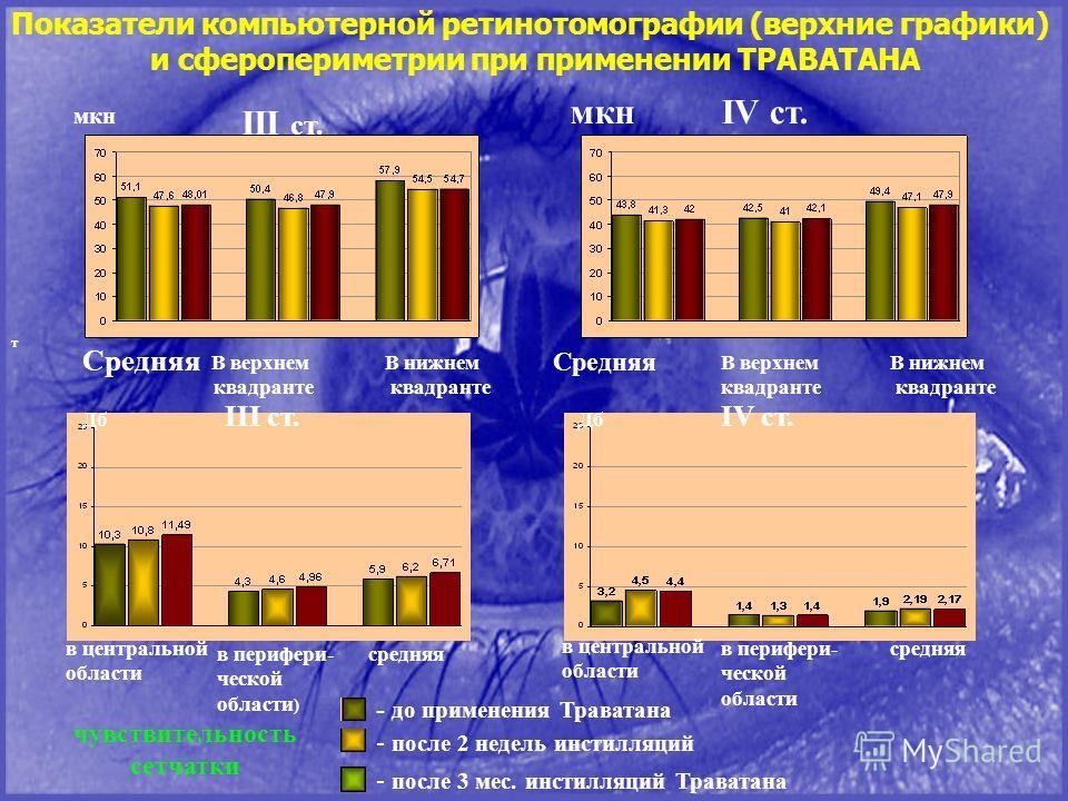 Показатели компьютерной ретинотомографии (верхние графики) и сферопериметрии при применении ТРАВАТАНА III ст. IV ст. III ст. IV ст. т Средняя В верхнем квадранте В нижнем квадранте Средняя В верхнем квадранте В нижнем квадранте чувствительность сетча