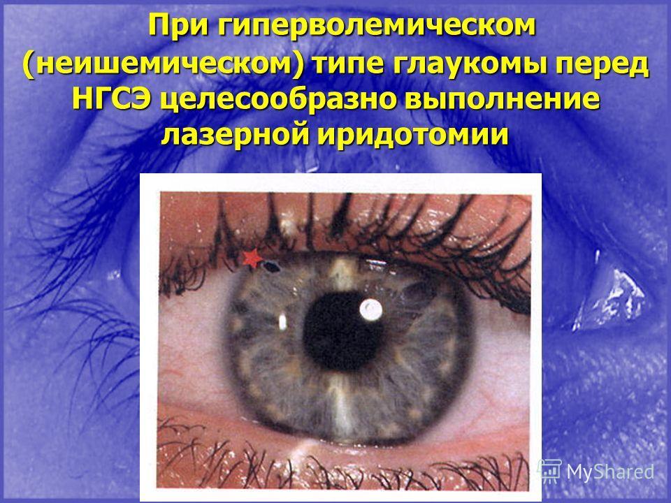 При гиперволемическом (неишемическом) типе глаукомы перед НГСЭ целесообразно выполнение лазерной иридотомии При гиперволемическом (неишемическом) типе глаукомы перед НГСЭ целесообразно выполнение лазерной иридотомии