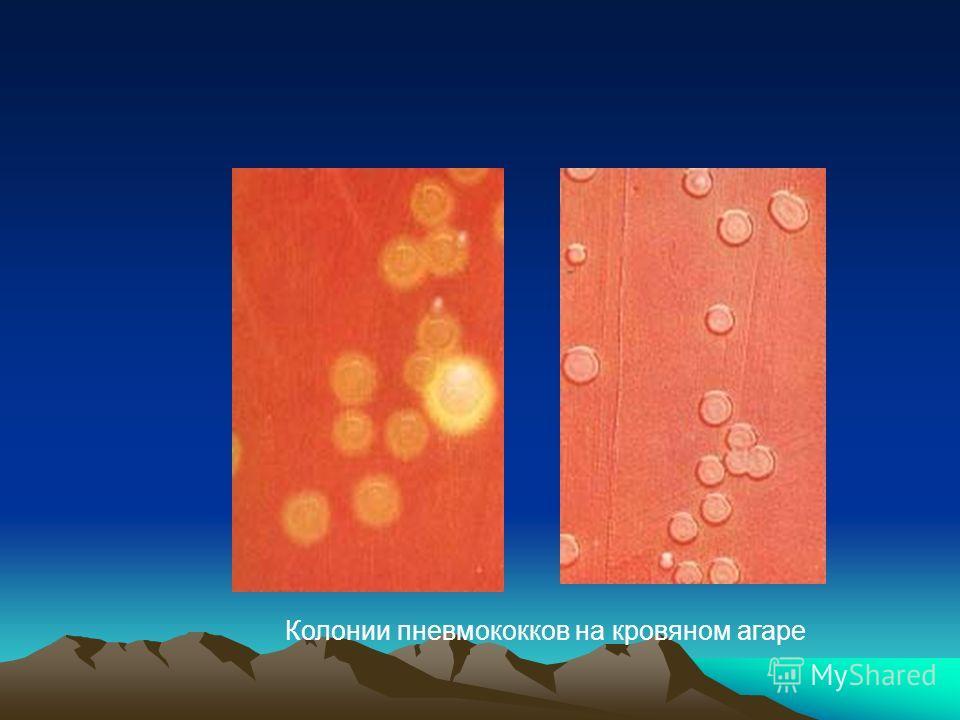 Колонии пневмококков на кровяном агаре