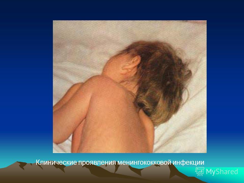 Клинические проявления менингококковой инфекции