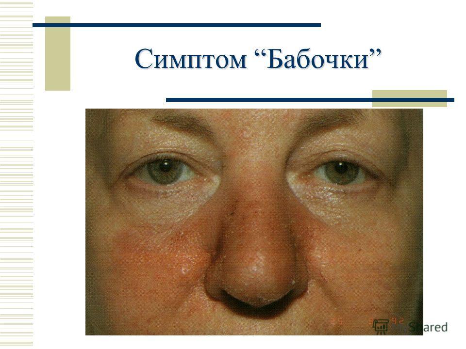 Симптом Бабочки