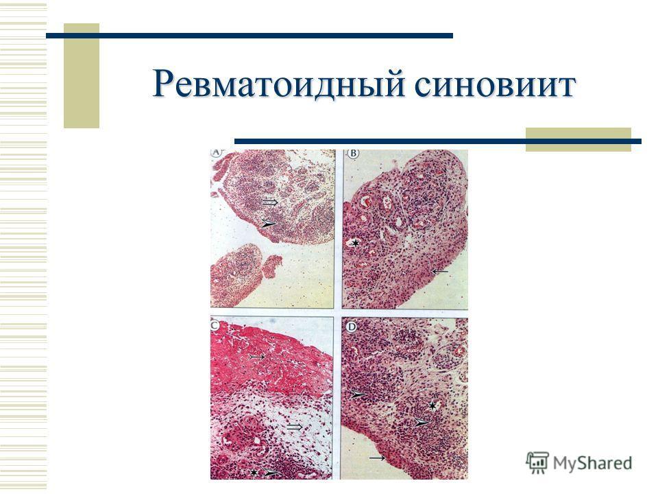 Ревматоидный синовиит