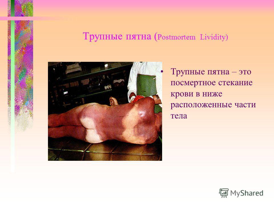 Трупные пятна ( Рostmortem Lividity) Трупные пятна – это посмертное стекание крови в ниже расположенные части тела