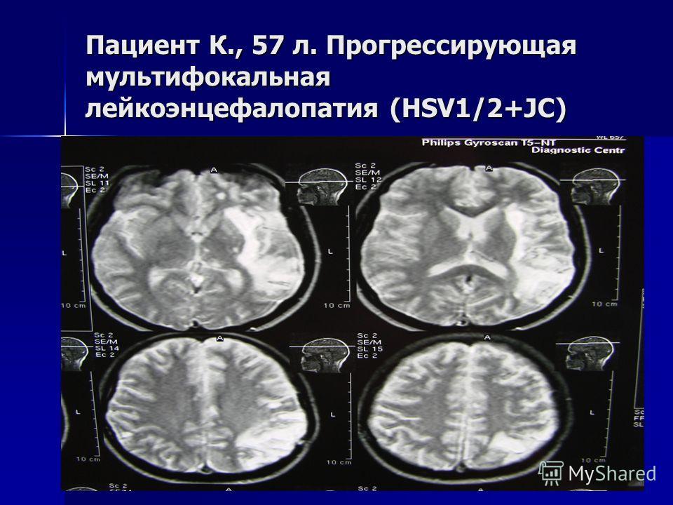 Пациент К., 57 л. Прогрессирующая мультифокальная лейкоэнцефалопатия (HSV1/2+JC)